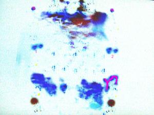 Mystery 1b J
